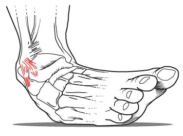 tornozeloruptura-100